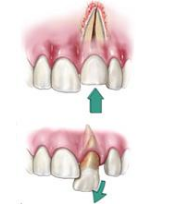 Traumatic Dental Injuries & Trauma to the Teeth - endodontics | bartram park