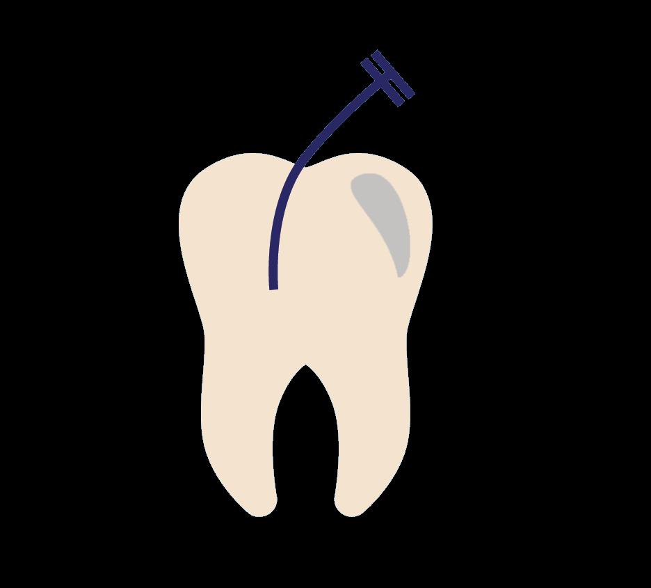 Endodontist Jacksonville FL